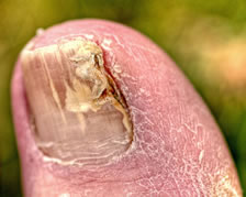 toenail fungus remedies