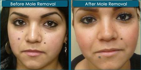 nevi skin before and after